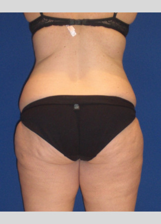 Before This Georgia mom had an abdominoplasty (tummy tuck) to remove loose skin and tighten her tummy muscles. She also had liposuction of her waist at the same time.  She is shown about 1 year after surgery.