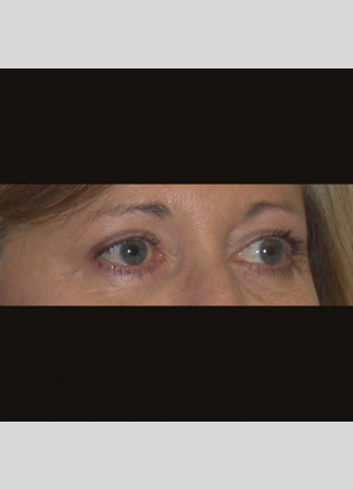 After This 50 year old female had upper blepharoplasty to remove extra fat and skin in the upper eyelids.  Her surgery was done in the office under local anesthesia.