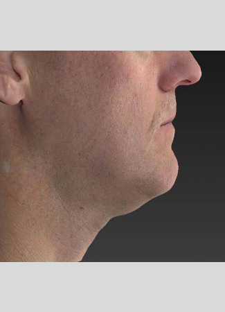 Before Note the improved contour of the jawline and the decreased fullness under the chin after an Ulthera treatment.
