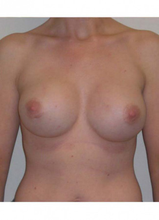 "After This 25 year old female chose 425 cc silicone gel implants. They were placed under the muscle using an incision around the areola, in order to correct her tuberous (constricted) breast shape. Her ""after"" photos were taken about 3 years after surgery."
