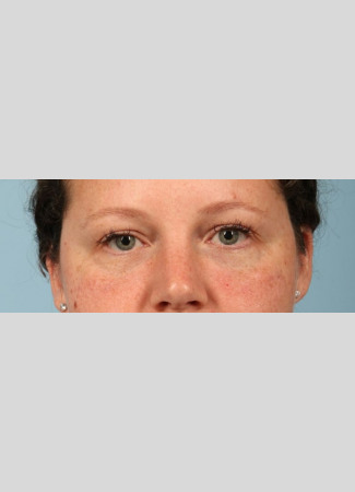 After This woman wanted to correct the hollows under her eyes. We used one syringe of Juvederm Vollure and one syringe of Juvederm Ultra to get this beautiful result. The