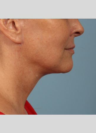 After This woman met her goals with Dr. Kavali by having a facelift with necklift to tighten her jawline and neck.