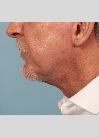 After A more defined jawline and lower face and neck in a male who chose Dr. Kavali for his facelift and necklift.
