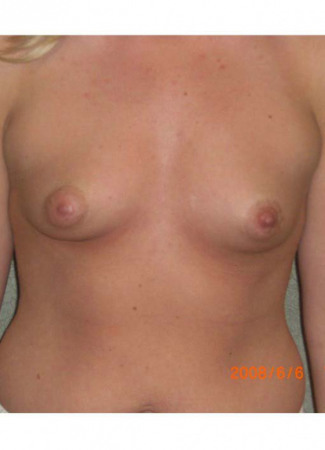 "Before This 25 year old female chose 425 cc silicone gel implants. They were placed under the muscle using an incision around the areola, in order to correct her tuberous (constricted) breast shape. Her ""after"" photos were taken about 3 years after surgery."