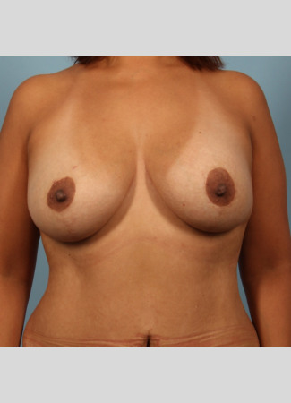 After This Atlanta woman wanted more fullness at the top of her breasts, and didn't mind being a bit larger.  She chose 290 cc Allergan SRL implants, along with her breast lift.  Her