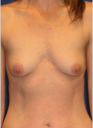 "Before This 37 year old female chose 350 cc silicone gel implants for her breast augmentation.  Her implants are beneath the muscle, and an inframammary crease incision was used.  Her ""after"" photos were taken about 1 year after surgery."