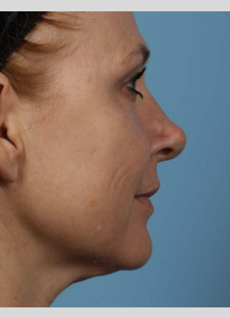 "Before This 50 year-old Atlanta woman chose Voluma to restore the youthful curves in her cheeks.  Her ""after"" photos are taken about 1 week after the treatment was done.  The goal is to give a subtle ""lift"" to the cheeks, which also improves the under-eye area."