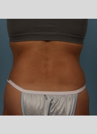 After This 40 year old Atlanta female chose CoolSculpting to contour her back and bra rolls.  She had 2 cycles of treatment on her lower back and is shown about 3 months after that treatment.