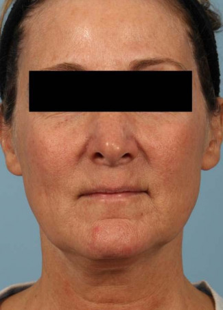 Before This 52 year-old Atlanta woman wanted a more youthful contour to her face, as well as smoother lines and brighter skin.  She has eMatrix sublative skin treatments, and she had 3 syringes of Voluma in her cheeks, and one syringe of Juvederm Ultra Plus in her nasolabial folds (smile lines).
