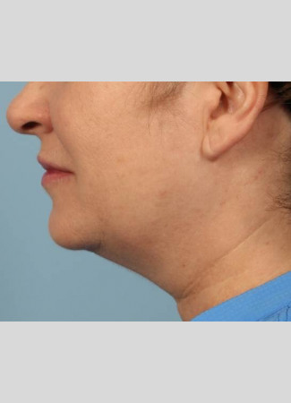 Before Results after two Kybella treatments