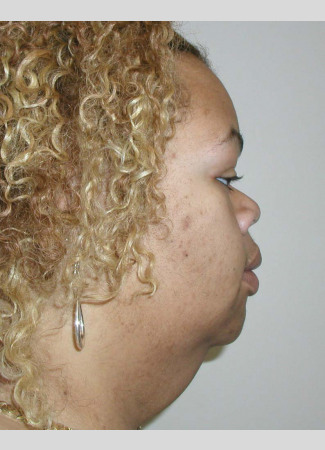 Before This woman lost over 200 pounds, then found herself with a lot of excess skin on her lower face and neck. Dr. Kavali performed a facelift with necklift to contour her lower face, neck, and jawline.