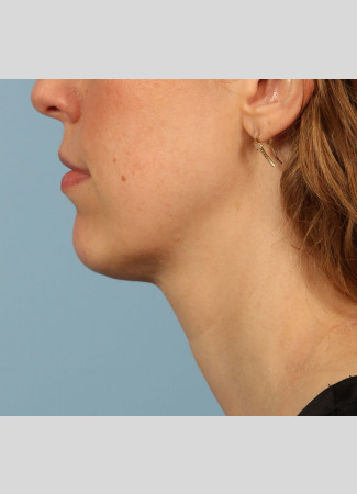 After Results after a single treatment with Kybella