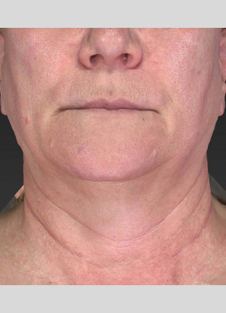 Before Ulthera gave this woman an amazing result!  No other treatments were done.  Ulthera alone is responsible for this tighter, slimmer neck and jawline!