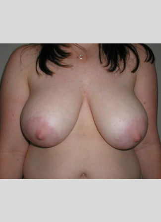 Before This woman in her 20s wanted smaller, lifted breasts, which Dr. Kavali accomplished with a short scar lift.