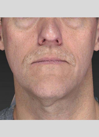 Before A slimmer, more taut jawline is shown here after an Ultherapy treatment.