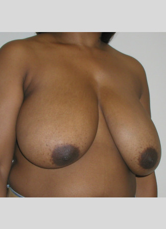 "Before This 35 year old female desired relief from back pain and shoulder pain due to her heavy breasts.  Dr. Kavali performed a SPAIR short scar breast reduction technique and removed about 700 grams from each breast.  Her ""after"" photos were taken about 6 months after surgery."