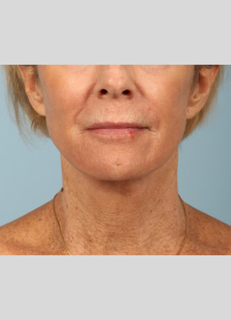 After This woman underwent a facelift and necklift using a high SMAS lift technique.  She also had a chemical peel done at the same time (a TCA peel) to brighten her skin.  She is shown about 6 months after surgery.