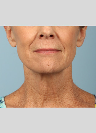 Before This woman underwent a facelift and necklift using a high SMAS lift technique.  She also had a chemical peel done at the same time (a TCA peel) to brighten her skin.  She is shown about 6 months after surgery.