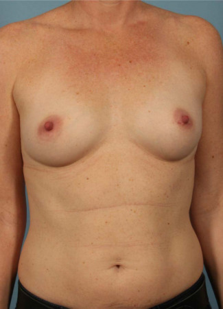 Before Dr. Kavali used Allergan gel implants to give this woman a fuller shape.