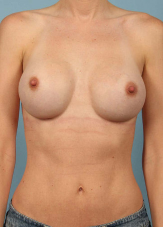 After  Bilateral breast augmentation by Dr. Kavali, using smooth, round, Allergan silicone gel implants,  339cc on the left and 375 cc on the right.