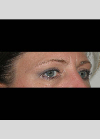 "After This 50 year old female wanted a more ""open"" look to her eyes.  She had an upper blepharoplasty to remove excess skin and fat from her upper eyelids.  Her ""after"" photos were taken about 1 year after surgery."