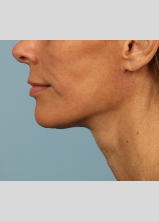 After A beautiful necklift and facelift with Dr. Kavali to tighten and define the jawline, neck, and lower face.