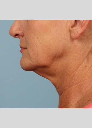 Before A high SMAS left as part of Dr. Kavali's facelift surgery gives this Atlanta woman a tighter neck, jawline and lower face.  She is shown about 6 months after surgery.