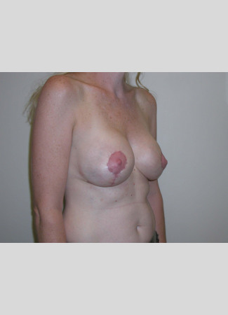 "After This woman in her 40s desired a breast lift, but didn't want to be any larger.  She had a SPAIR short scar breast lift with no implants.  Her ""after"" photos were taken about 6 weeks after surgery, so her scars will continue to fade over time."