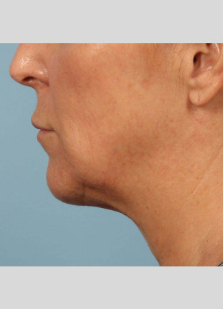 After This 58 year old Atlanta woman chose Kybella with Dr. Kavali to reduce the fullness in her neck.  Her results are shown 6 months after 3 Kybella treatments. She is thrilled with her results!