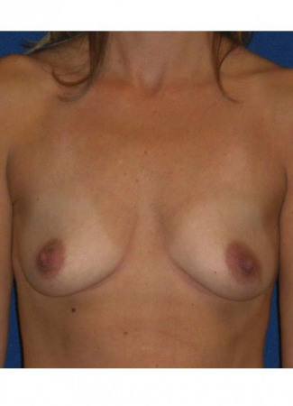 Before This Atlanta woman chose 286 cc Allergan gel implants under the muscle, placed through the crease.
