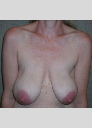 "Before This woman in her 40s desired a breast lift, but didn't want to be any larger.  She had a SPAIR short scar breast lift with no implants.  Her ""after"" photos were taken about 6 weeks after surgery, so her scars will continue to fade over time."