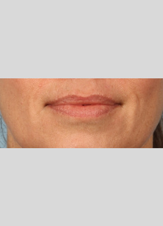 Before After 1 syringe of Juvederm Ultra Plus to lips