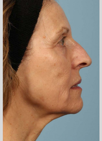 After This 68 year old Atlanta woman had a consultation with Dr. Kavali for facial rejuvenation.  Together, they decided that a variety of fillers would be best.  She had 4 syringes of Voluma in her cheeks, a syringe of Restylane Silk in her lips and around her mouth for the fine lines, and a syringe of Juvederm Ultra Plus in the nasolabial folds (smile lines). She is shown about 2 weeks after her treatment was done.