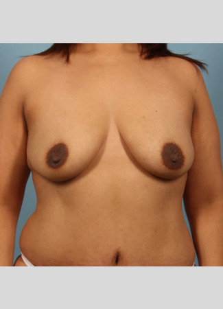 Before This Atlanta woman wanted more fullness at the top of her breasts, and didn't mind being a bit larger.  She chose 290 cc Allergan SRL implants, along with her breast lift.  Her