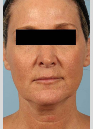 After This 52 year-old Atlanta woman wanted a more youthful contour to her face, as well as smoother lines and brighter skin.  She has eMatrix sublative skin treatments, and she had 3 syringes of Voluma in her cheeks, and one syringe of Juvederm Ultra Plus in her nasolabial folds (smile lines).