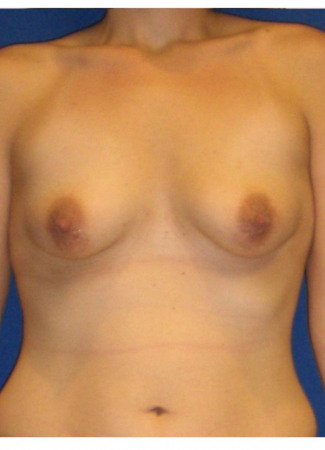 "Before This 30 year old female chose 375 cc silicone implants for her breast augmentation.  Her incisions are around her areolae, in order to correct her tuberous (constricted) breast shape at the same time.  Her ""after"" photos were taken about 6 months after surgery."
