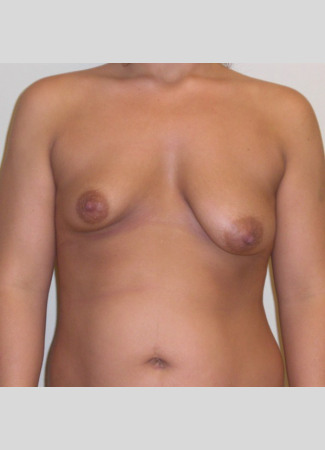 "Before This Atlanta woman presented with significant breast asymmetry. Dr. Kavali used a 400 cc saline implant on the right and a 330 cc saline implant on the left. The ""after"" photo was taken about 6 months after surgery."
