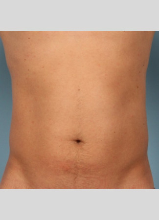 After This Atlanta man chose CoolSculpting to contour his abs and waist. He is shown about 2 months after his treatment.