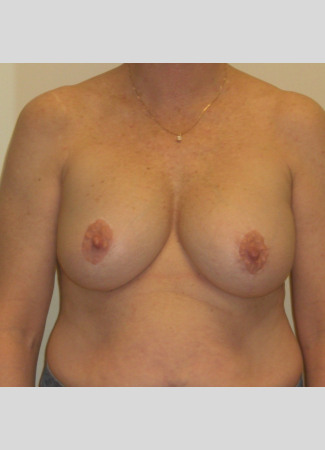 "After This woman desired fuller breasts and needed a lift at the same time. We used 390 cc gel implants beneath the muscle. Her ""after"" photos were taken about 5 years after her surgery."