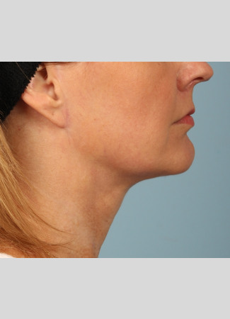 After Another beautiful necklift result from Dr. Kavali.