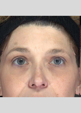 Before The power of Ulthera to lift the brows is shown here.