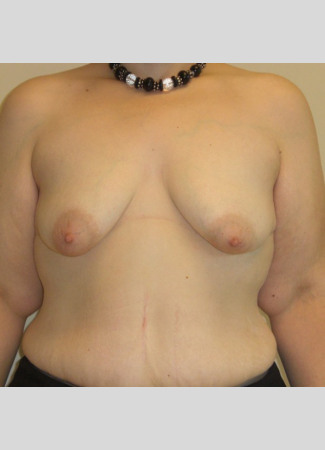"Before This 38 year old Atlanta woman underwent a breast augmentation and lift at the same time.  She had 500 cc high profile silicone gel implants placed under the muscle.  Her ""after"" photo was taken about 4 years after surgery."