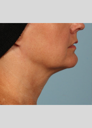 Before Another beautiful necklift result from Dr. Kavali.