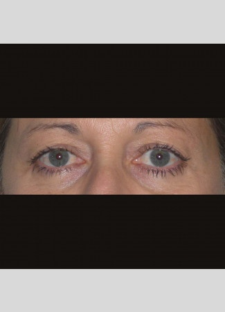 Before This 50 year old female had upper blepharoplasty to remove extra fat and skin in the upper eyelids.  Her surgery was done in the office under local anesthesia.