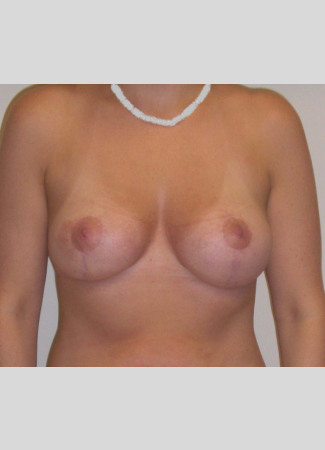After This woman in her 30s wanted smaller, perkier breasts.  A short scar breast lift from Dr. Kavali did just that for her.