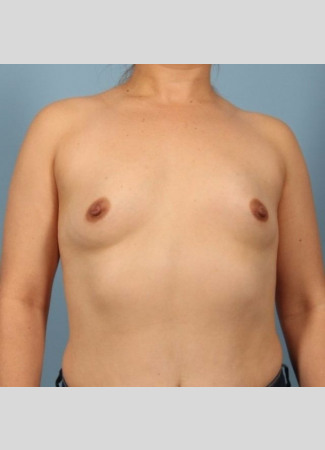 Before 450 cc high profile silicone gel augmentation by Dr. Kavali