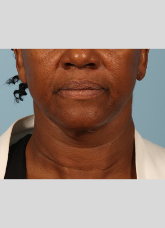 After This Atlanta woman had a facelift using a SMAS lift technique that lifts and tighten the lower face, jawline, and neck.  She is shown about 6 months after her outpatient surgery was done.