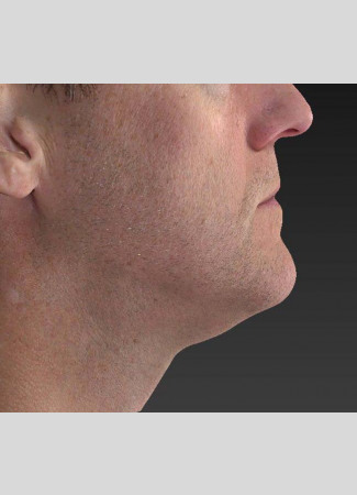 After Note the improved contour of the jawline and the decreased fullness under the chin after an Ulthera treatment.