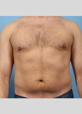 After This Atlanta male chose CoolSculpting to contour his abdomen and waist. He is shown before and about 2 months after his treatment. He completed 3 treatment cycles
