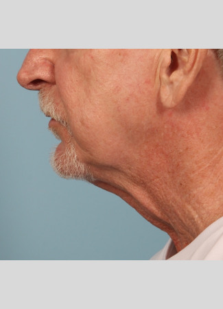 Before A more defined jawline and lower face and neck in a male who chose Dr. Kavali for his facelift and necklift.
